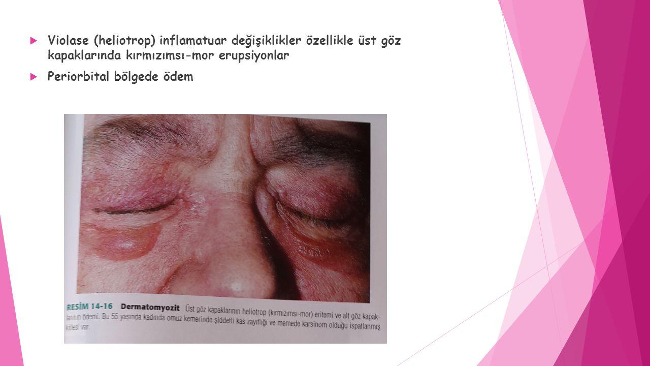 Violase (heliotrop) inflamatuar değişiklikler özellikle üst göz kapaklarında kırmızımsı-mor erupsiyonlar