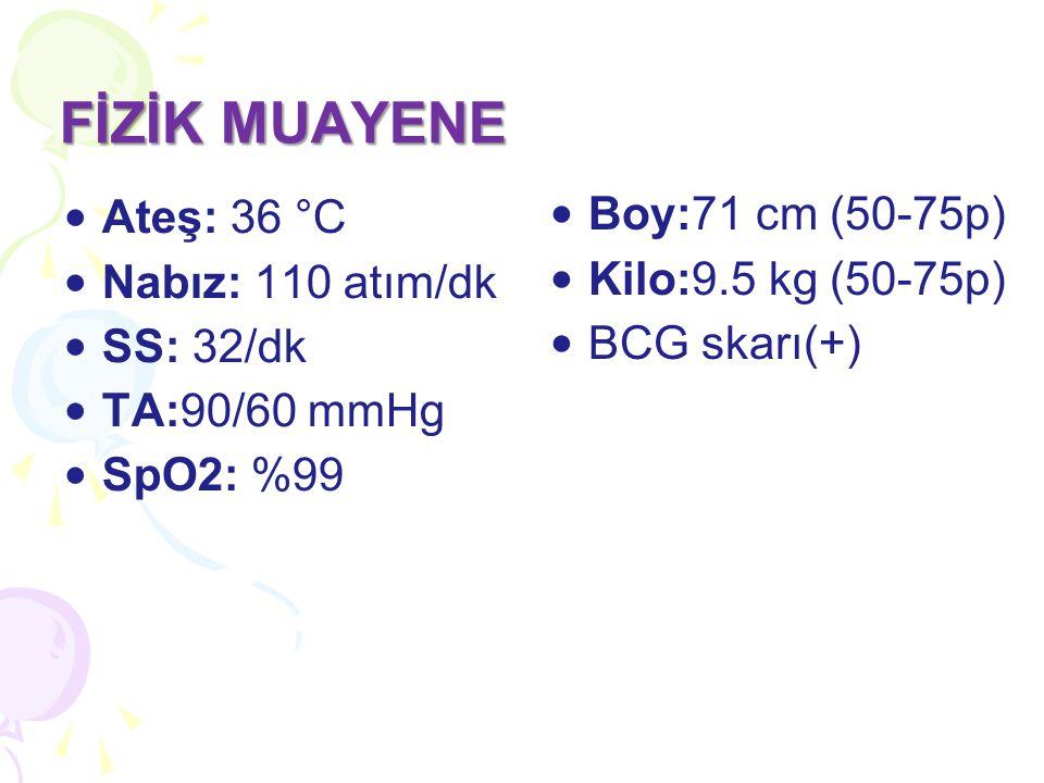 FİZİK MUAYENE Boy:71 cm (50-75p) Ateş: 36 °C Nabız: 110 atım/dk