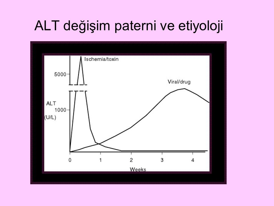 ALT değişim paterni ve etiyoloji