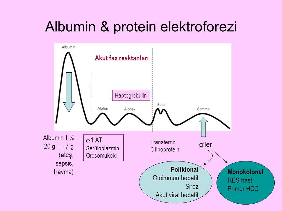 Albumin & protein elektroforezi