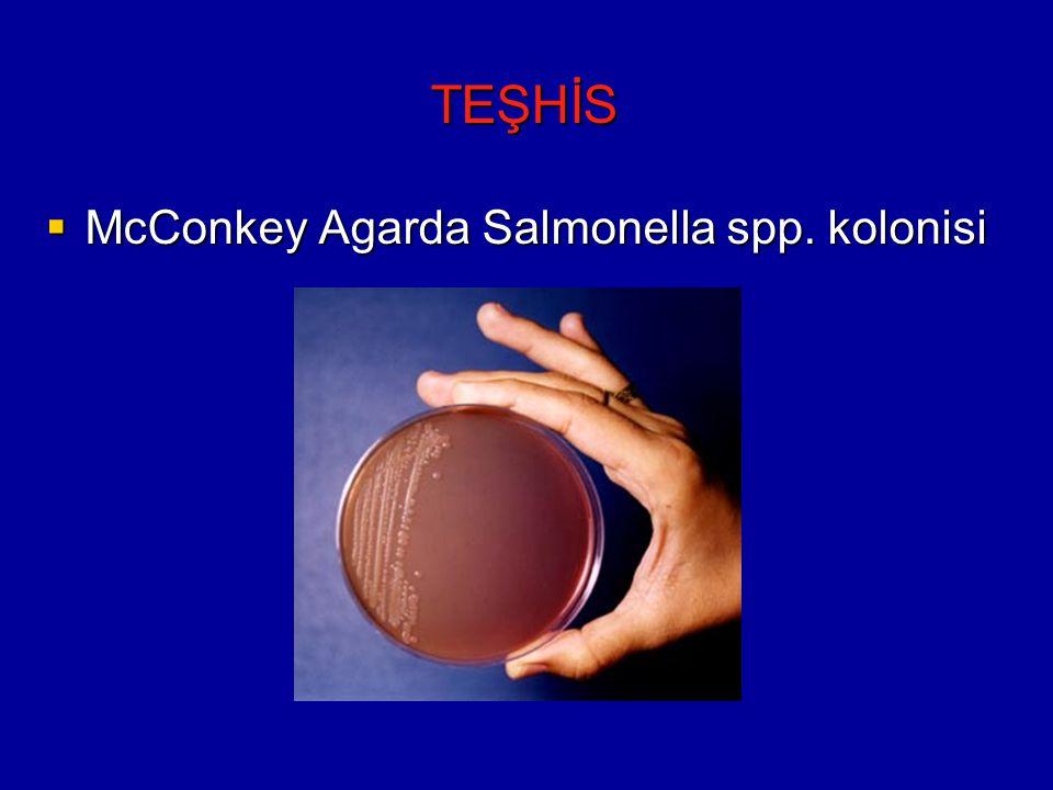 TEŞHİS McConkey Agarda Salmonella spp. kolonisi