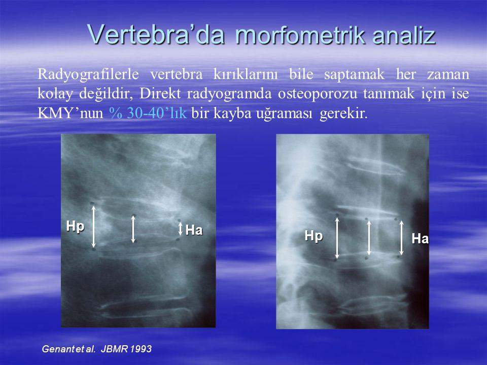 Vertebra'da morfometrik analiz