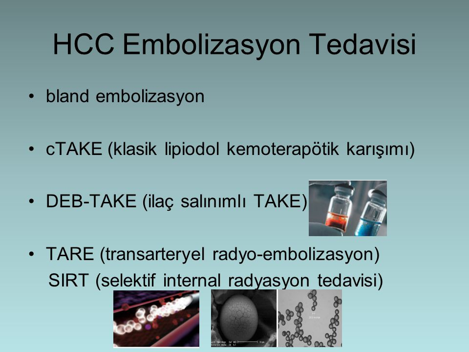 HCC Embolizasyon Tedavisi