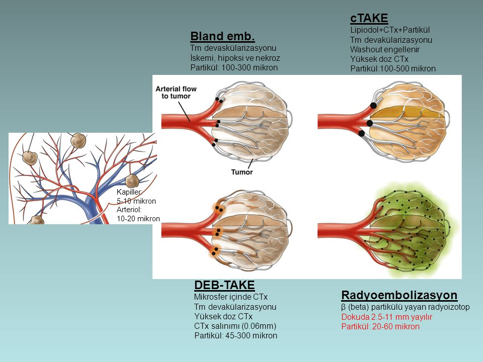 cTAKE Bland emb. DEB-TAKE Radyoembolizasyon Lipiodol+CTx+Partikül