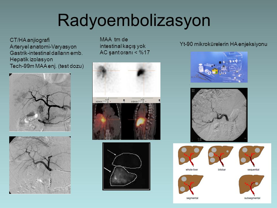 Radyoembolizasyon CT/HA anjiografi MAA tm de