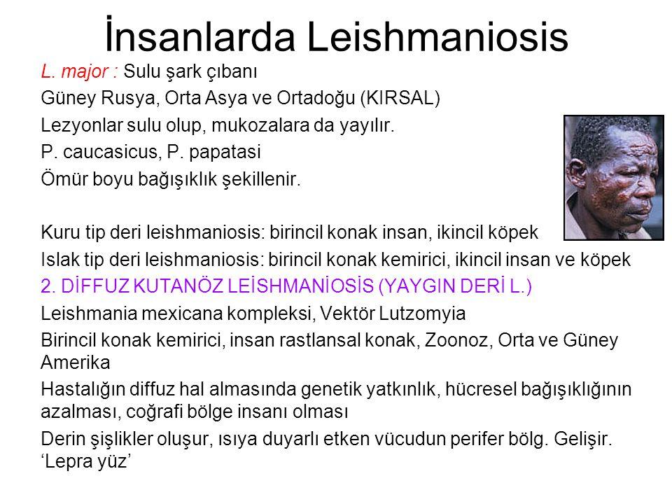 İnsanlarda Leishmaniosis