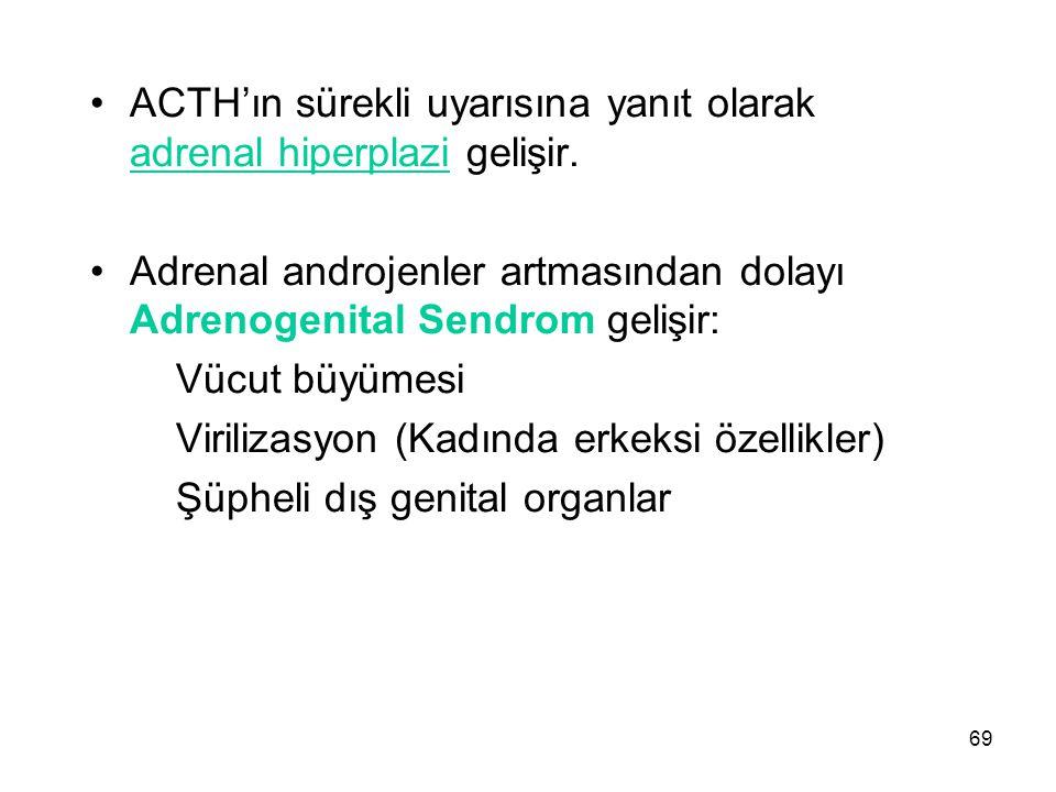 ACTH'ın sürekli uyarısına yanıt olarak adrenal hiperplazi gelişir.