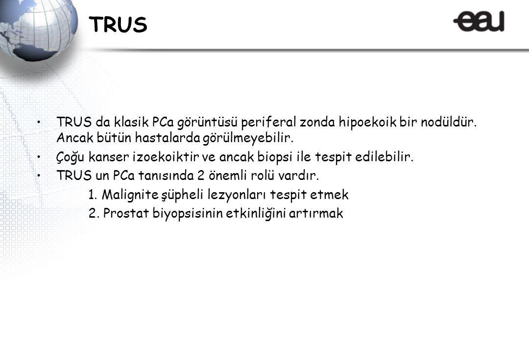 TRUS TRUS da klasik PCa görüntüsü periferal zonda hipoekoik bir nodüldür. Ancak bütün hastalarda görülmeyebilir.