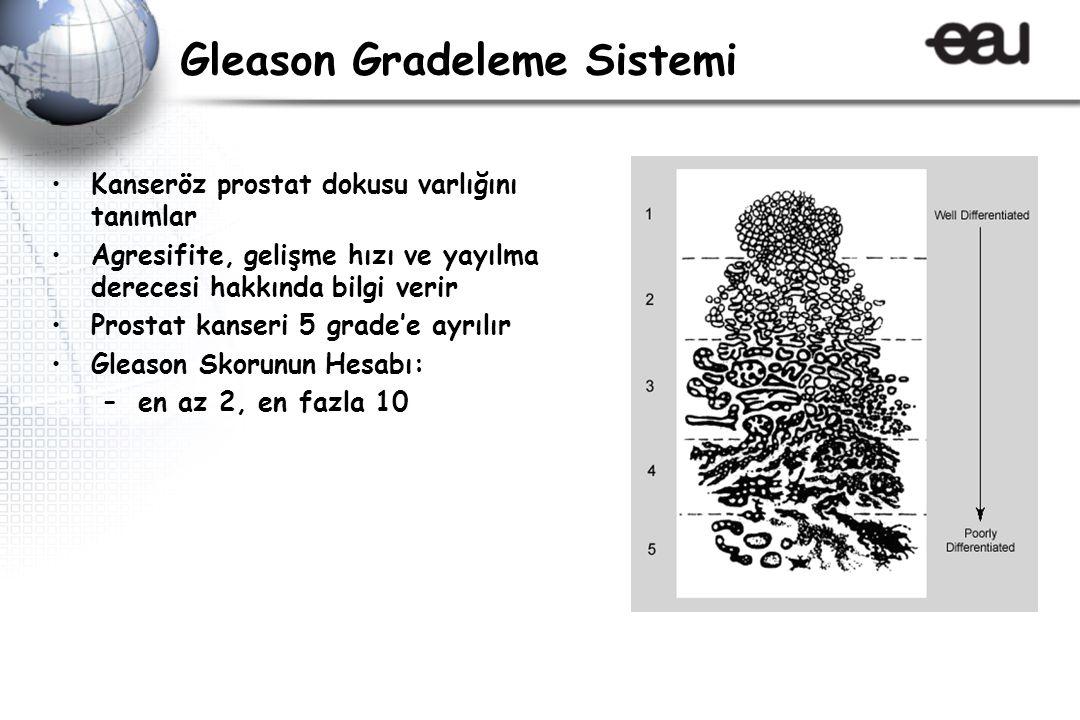 Gleason Gradeleme Sistemi