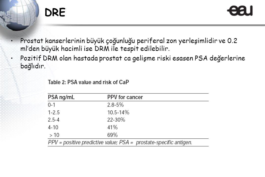 DRE Prostat kanserlerinin büyük çoğunluğu periferal zon yerleşimlidir ve 0.2 ml'den büyük hacimli ise DRM ile tespit edilebilir.