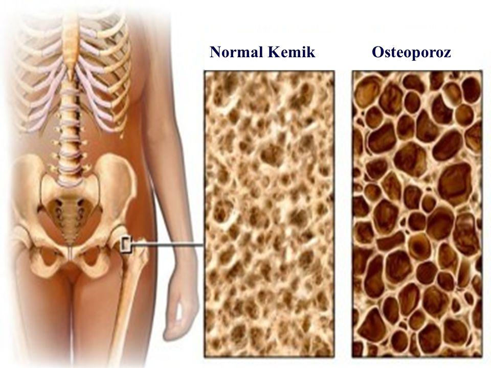 Normal Kemik Osteoporoz