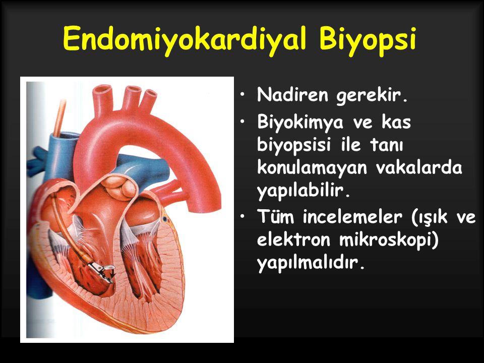 Endomiyokardiyal Biyopsi