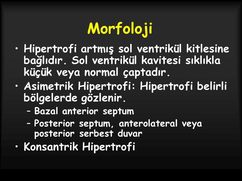 Morfoloji Hipertrofi artmış sol ventrikül kitlesine bağlıdır. Sol ventrikül kavitesi sıklıkla küçük veya normal çaptadır.