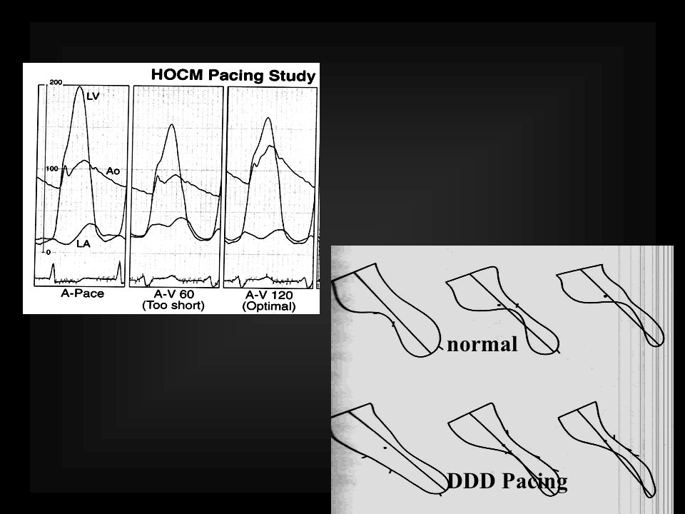 normal DDD Pacing