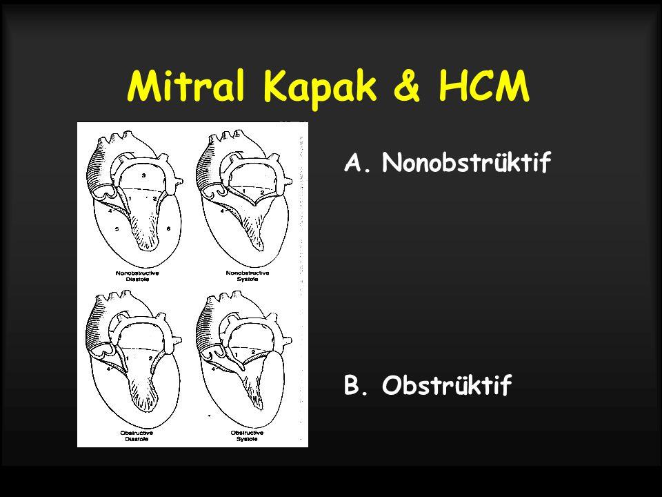 Mitral Kapak & HCM Nonobstrüktif Obstrüktif