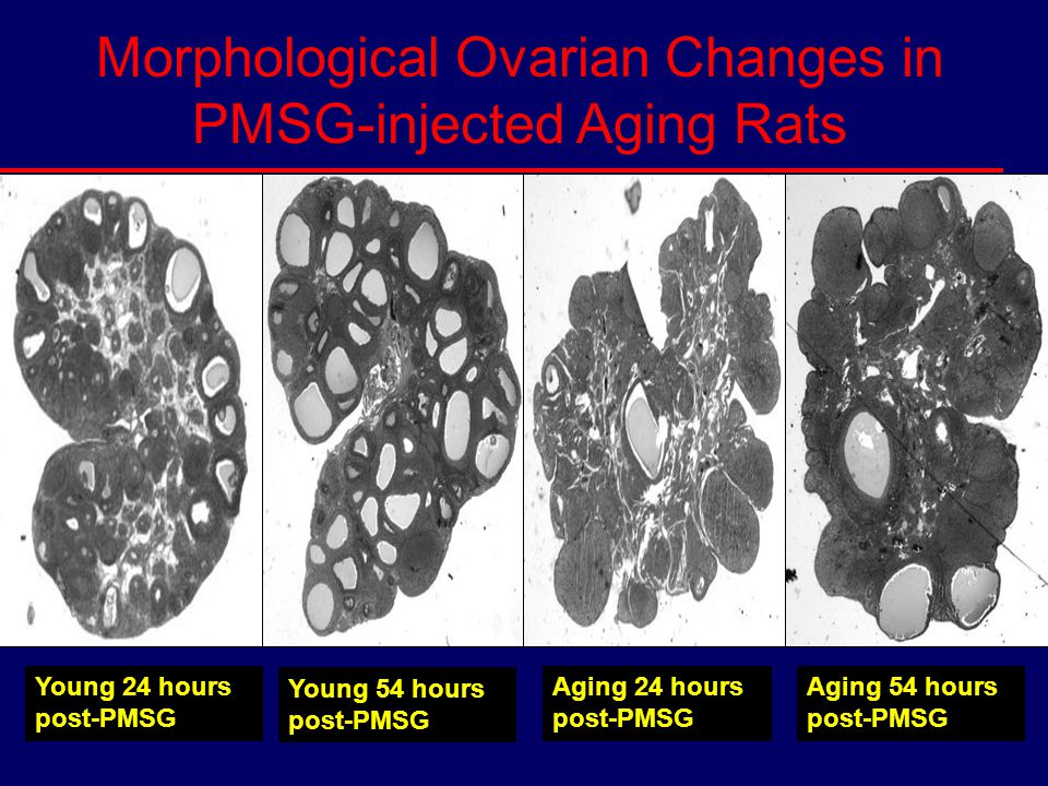 Morphological Ovarian Changes in PMSG-injected Aging Rats