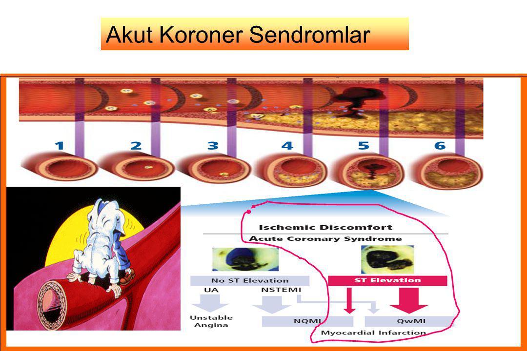 Akut Koroner Sendromlar