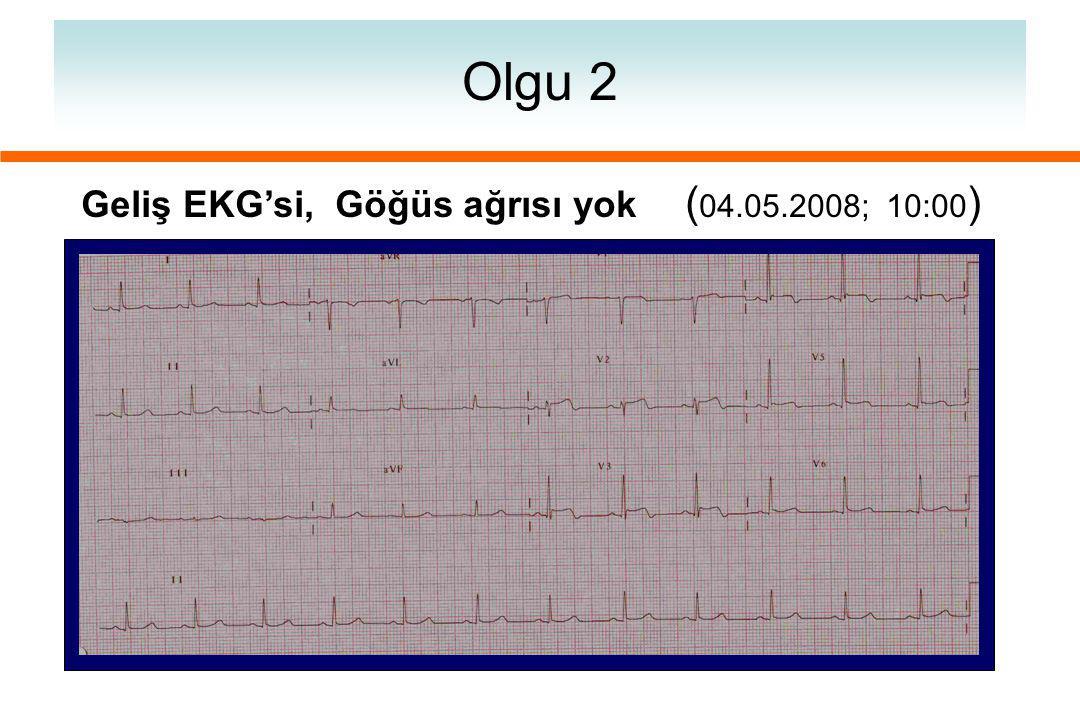 Olgu 2 Geliş EKG'si, Göğüs ağrısı yok (04.05.2008; 10:00)