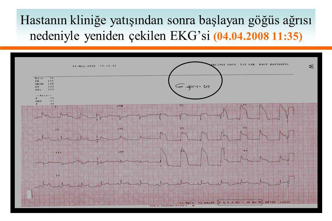 Hastanın kliniğe yatışından sonra başlayan göğüs ağrısı nedeniyle yeniden çekilen EKG'si (04.04.2008 11:35)