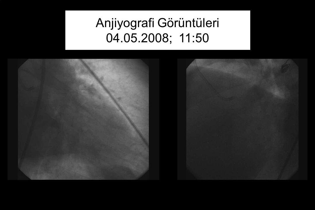 Anjiyografi Görüntüleri 04.05.2008; 11:50