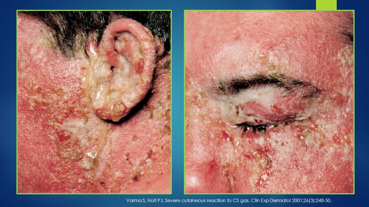 Varma S, Holt PJ. Severe cutaneous reaction to CS gas