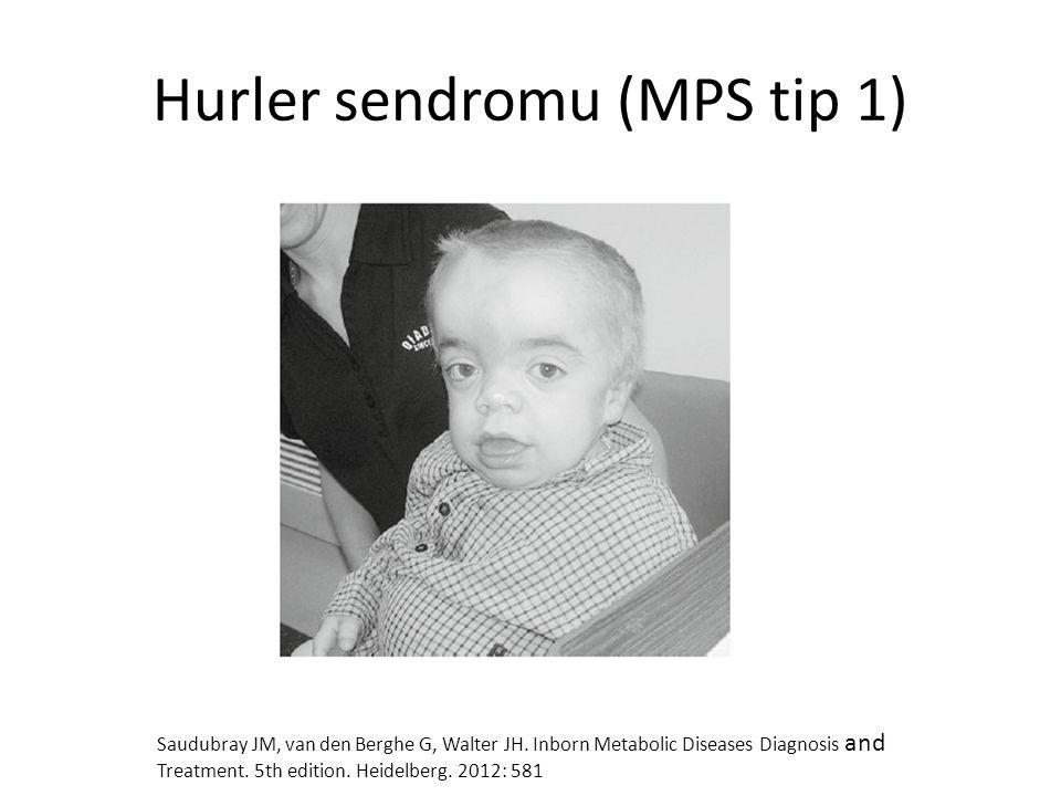 Hurler sendromu (MPS tip 1)