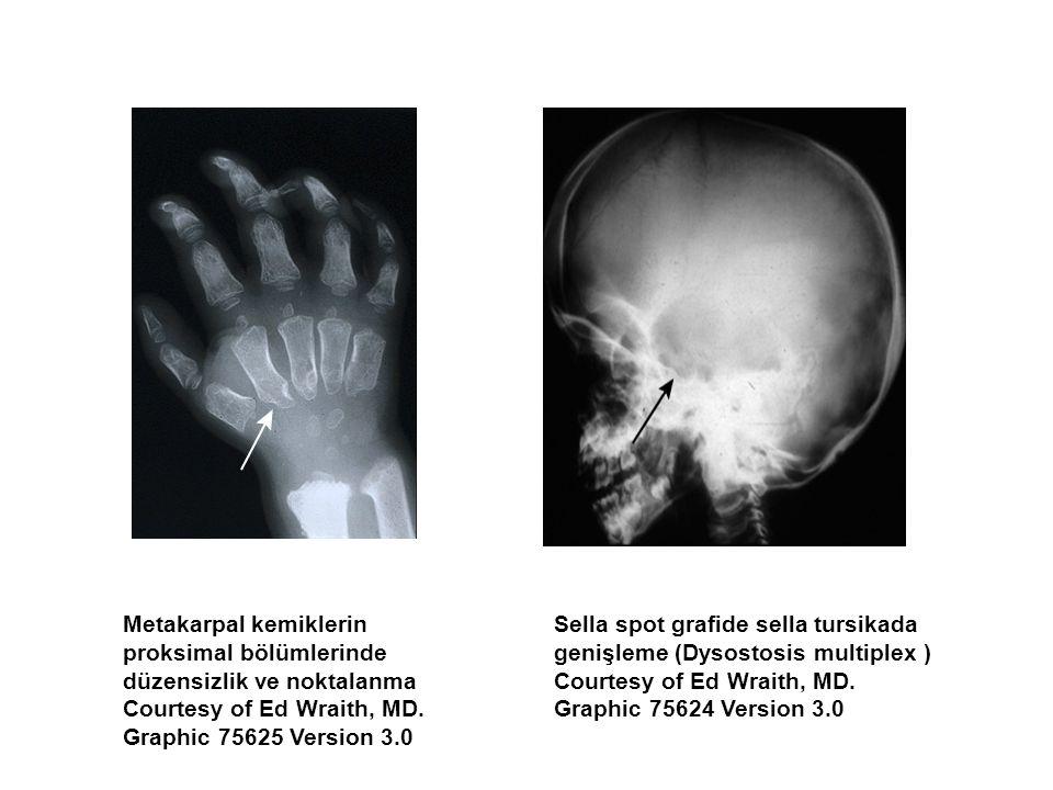 Metakarpal kemiklerin proksimal bölümlerinde düzensizlik ve noktalanma Courtesy of Ed Wraith, MD.
