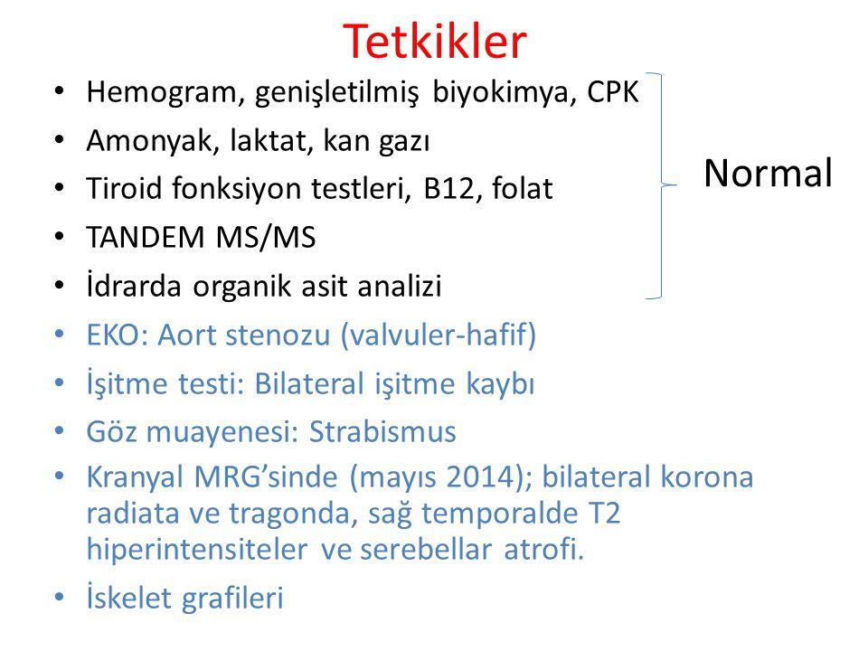 Tetkikler Normal Hemogram, genişletilmiş biyokimya, CPK
