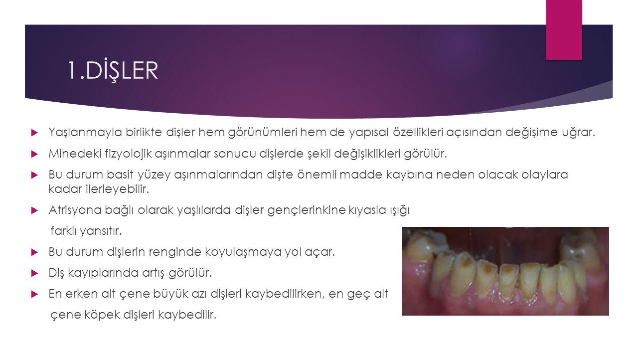 1.DİŞLER Yaşlanmayla birlikte dişler hem görünümleri hem de yapısal özellikleri açısından değişime uğrar.