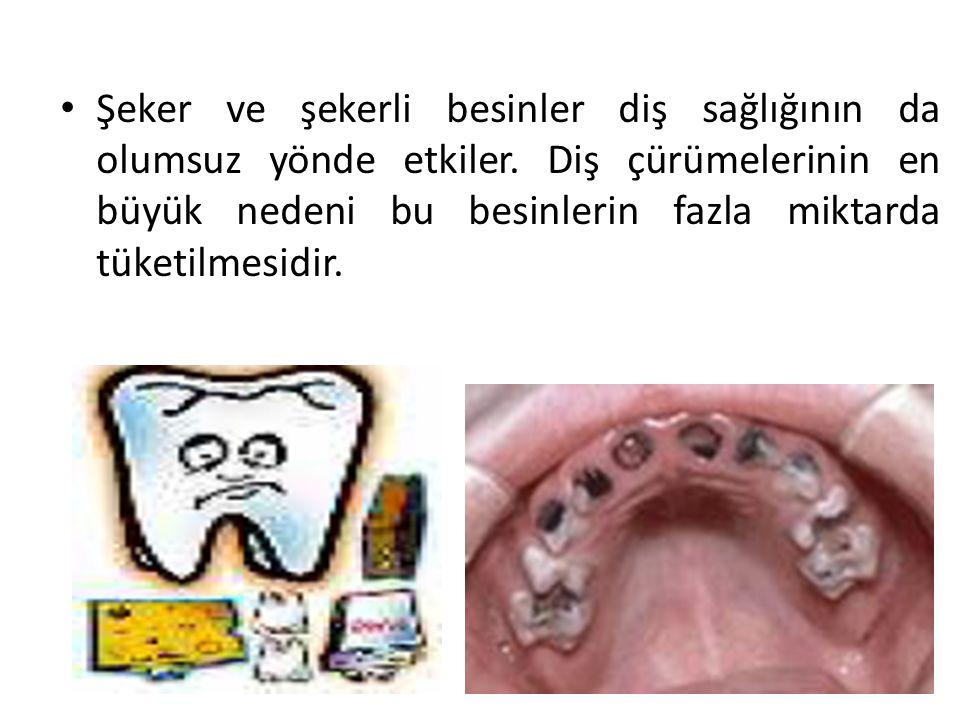 Şeker ve şekerli besinler diş sağlığının da olumsuz yönde etkiler