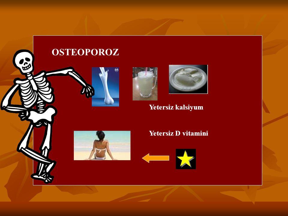 OSTEOPOROZ Yetersiz kalsiyum Yetersiz D vitamini