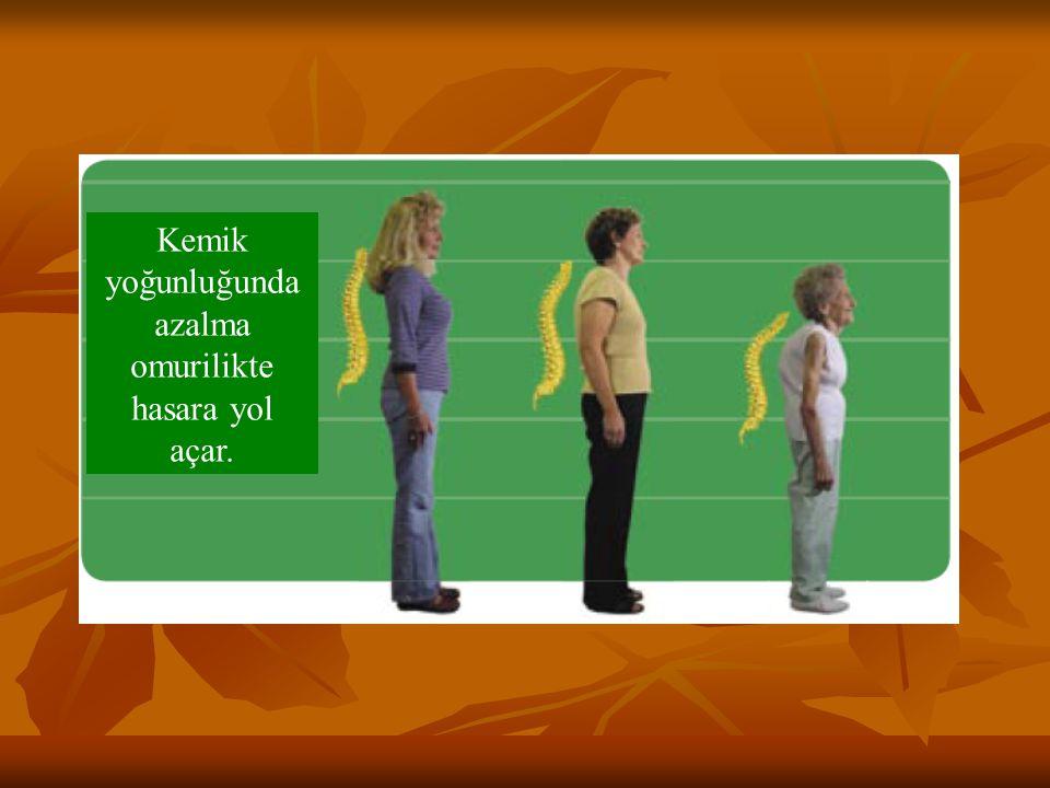 Kemik yoğunluğunda azalma omurilikte hasara yol açar.