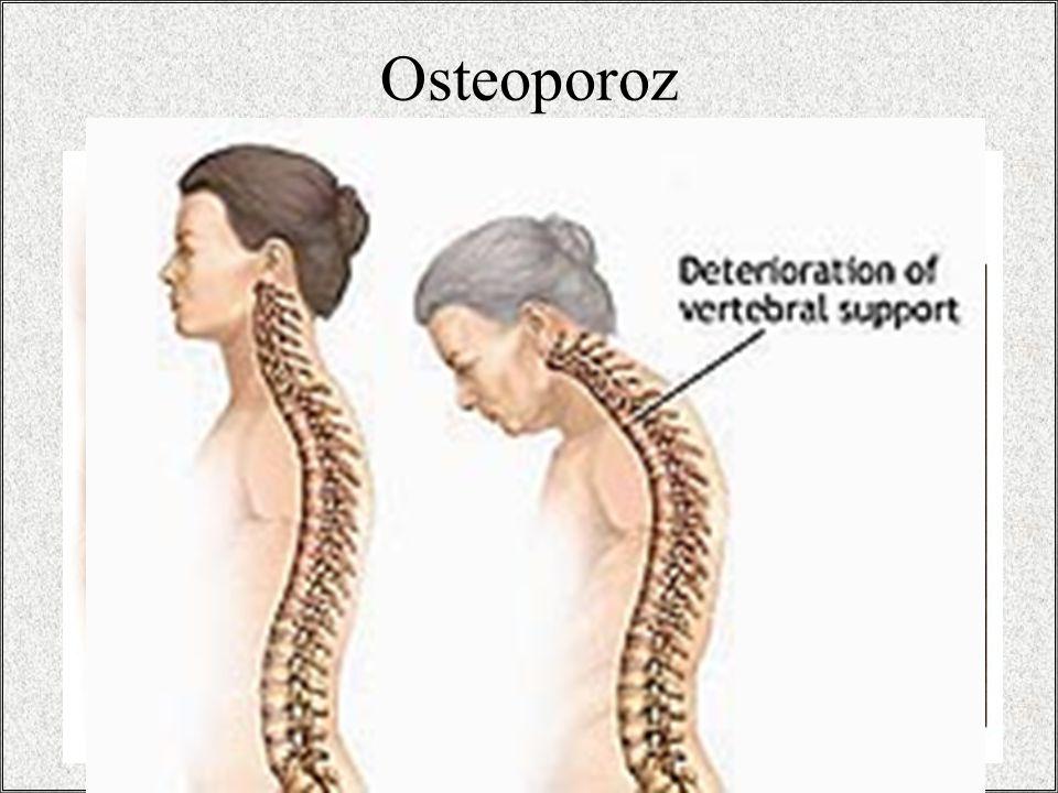 Osteoporoz / 32