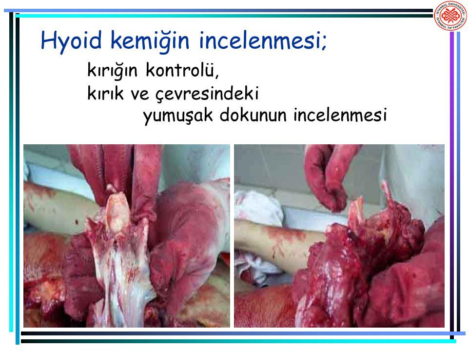 Hyoid kemiğin incelenmesi; kırığın kontrolü, kırık ve çevresindeki