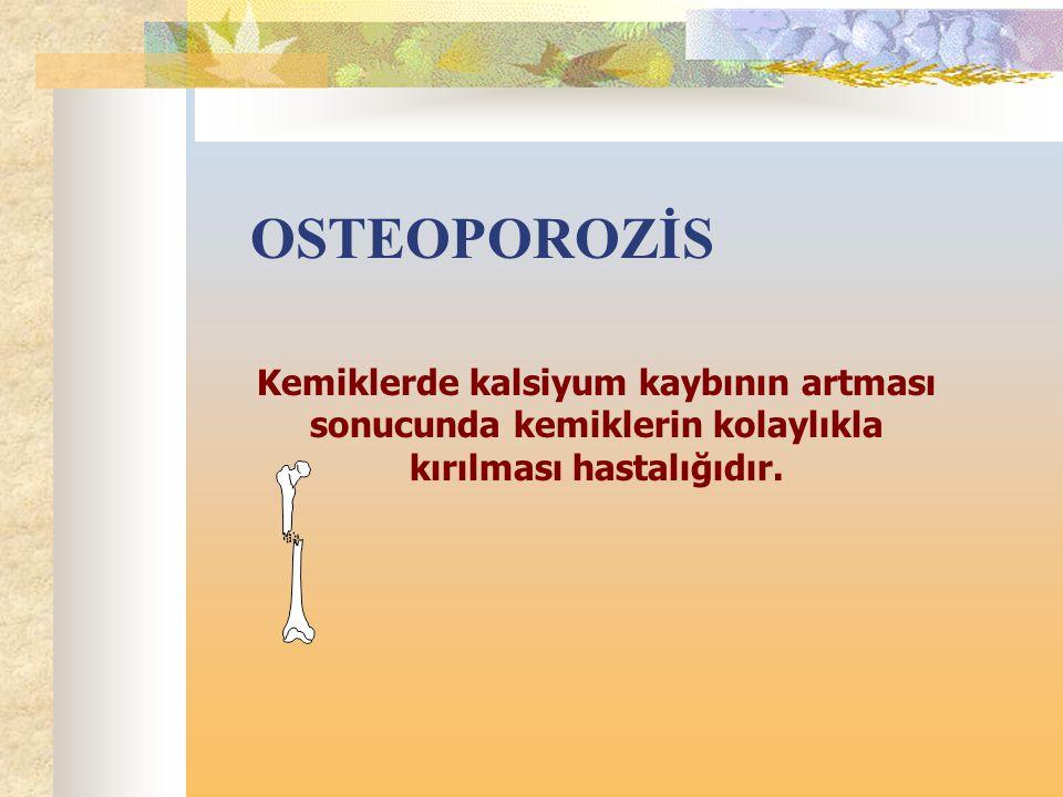 OSTEOPOROZİS Kemiklerde kalsiyum kaybının artması