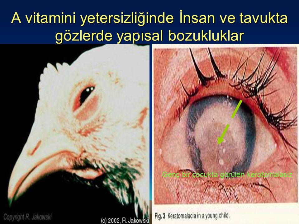 A vitamini yetersizliğinde İnsan ve tavukta gözlerde yapısal bozukluklar