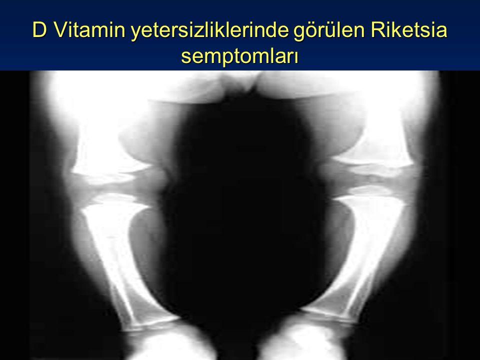 D Vitamin yetersizliklerinde görülen Riketsia semptomları