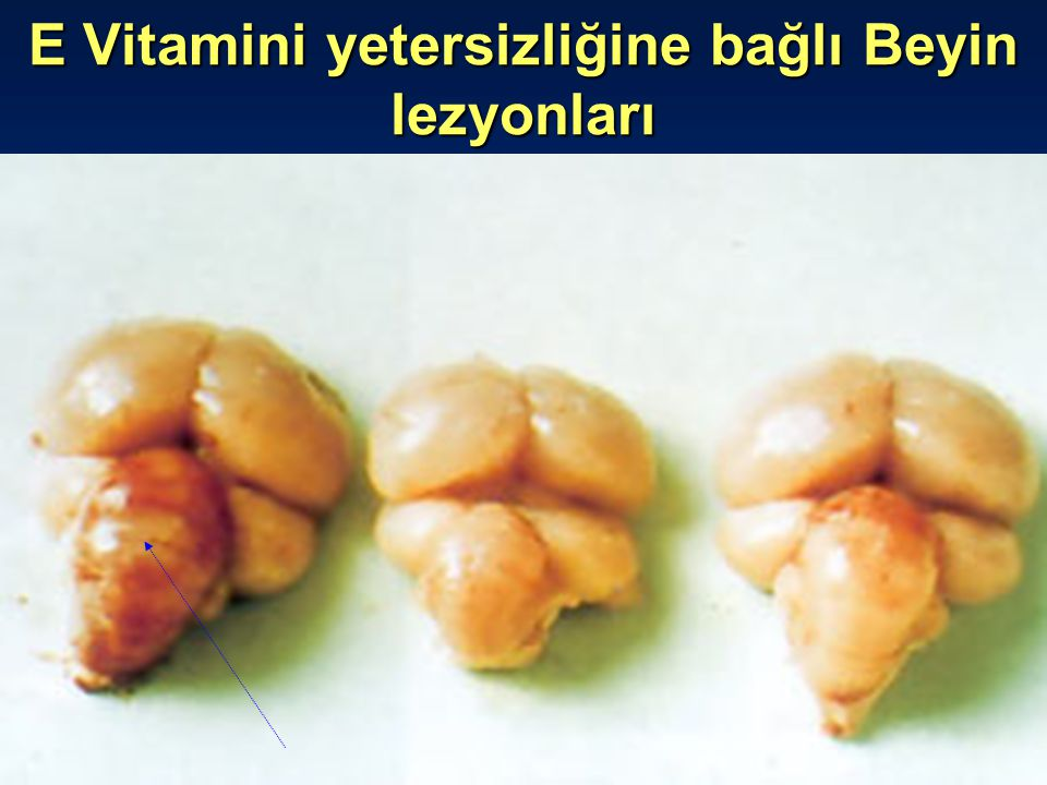 E Vitamini yetersizliğine bağlı Beyin lezyonları