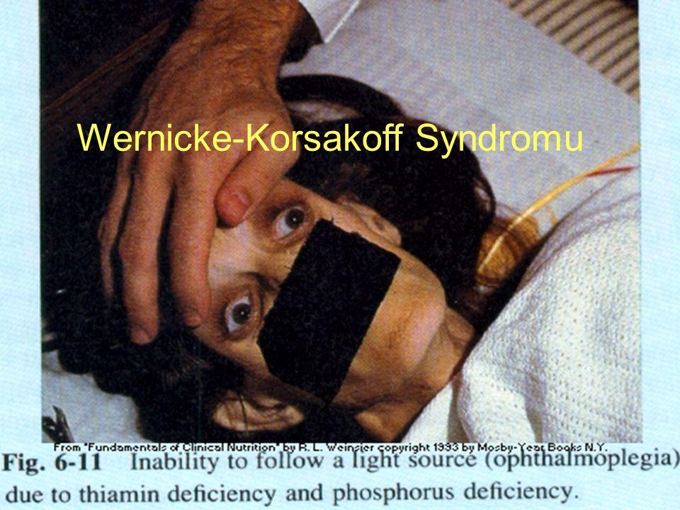 Wernicke-Korsakoff Syndromu