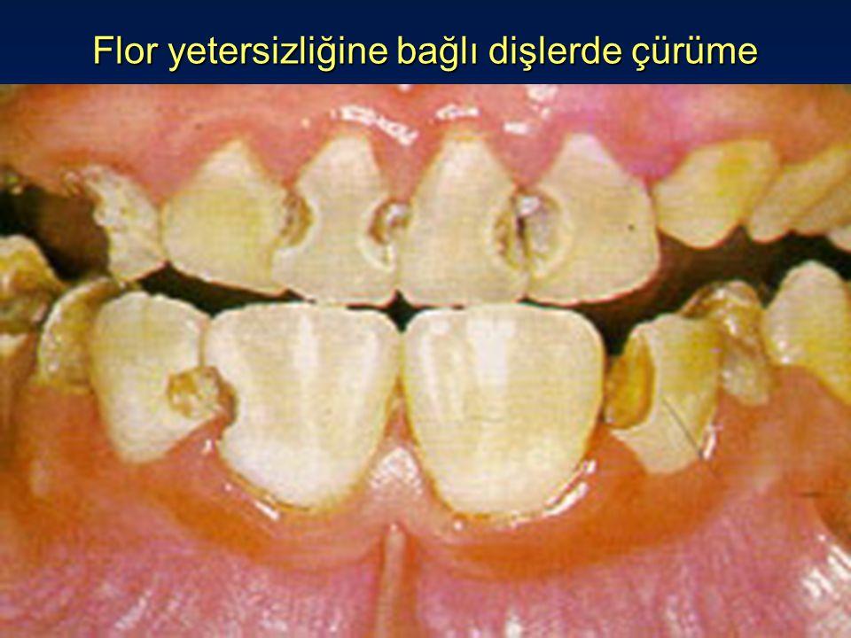 Flor yetersizliğine bağlı dişlerde çürüme