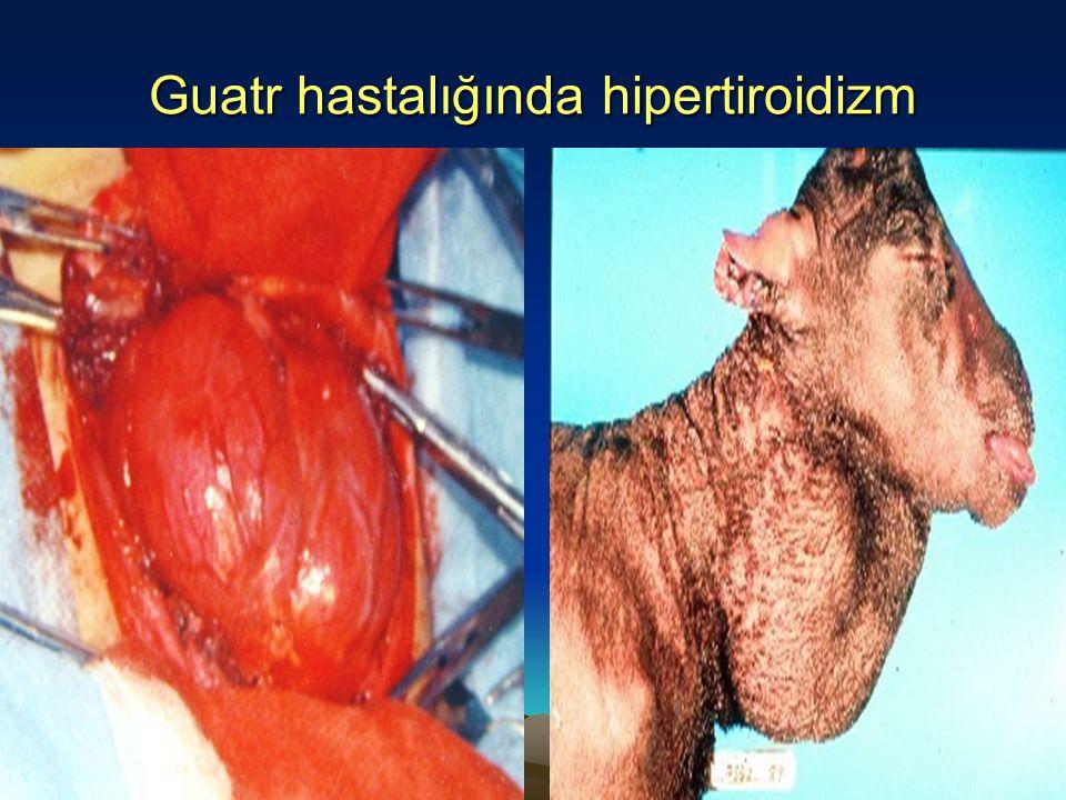 Guatr hastalığında hipertiroidizm