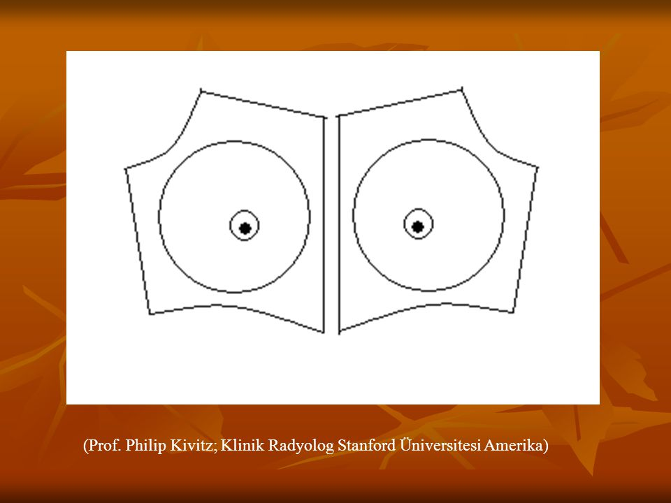 (Prof. Philip Kivitz; Klinik Radyolog Stanford Üniversitesi Amerika)
