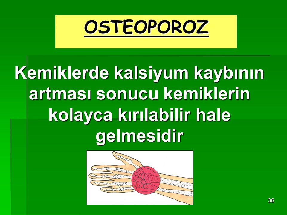 OSTEOPOROZ Kemiklerde kalsiyum kaybının artması sonucu kemiklerin kolayca kırılabilir hale gelmesidir.