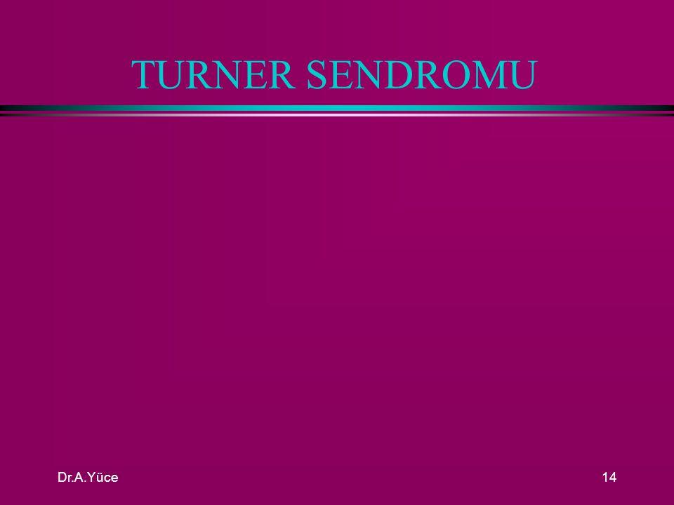 TURNER SENDROMU Dr.A.Yüce