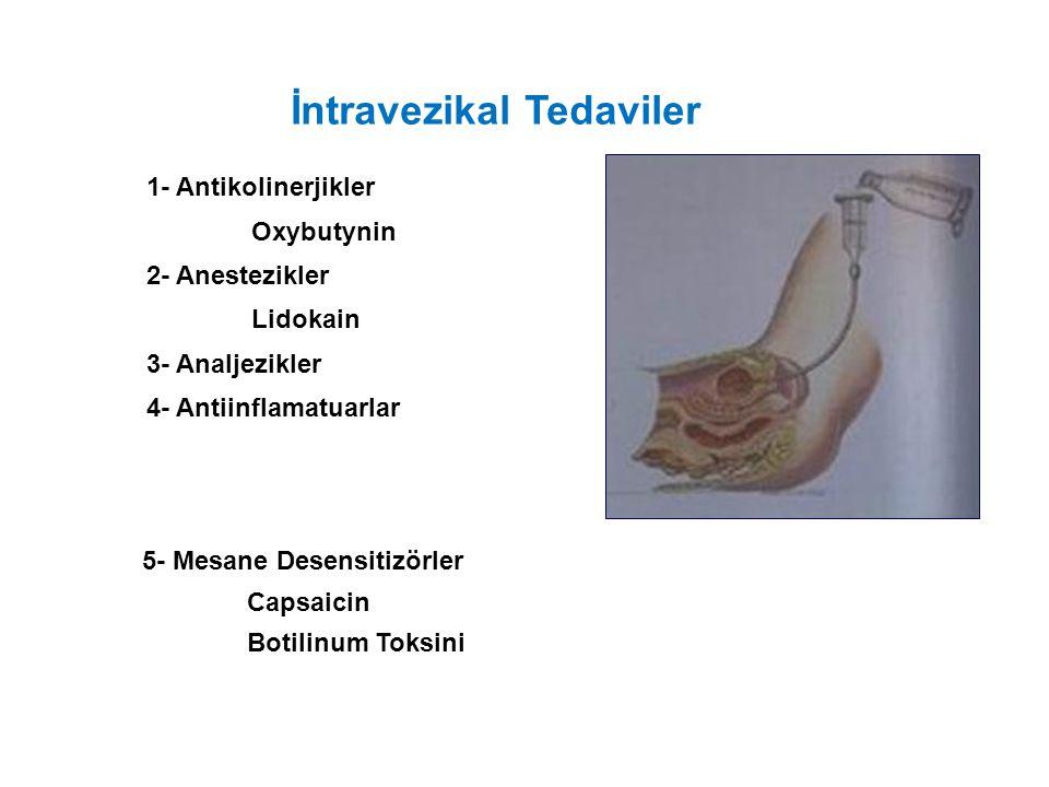 İntravezikal Tedaviler