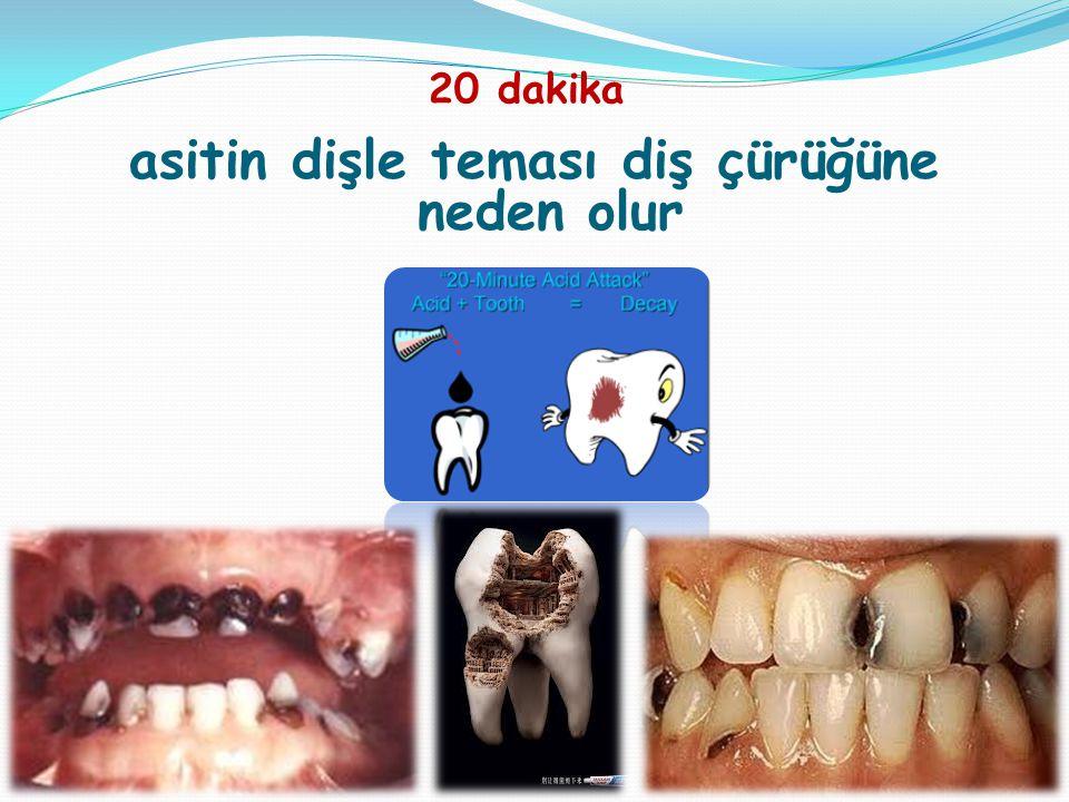 asitin dişle teması diş çürüğüne neden olur