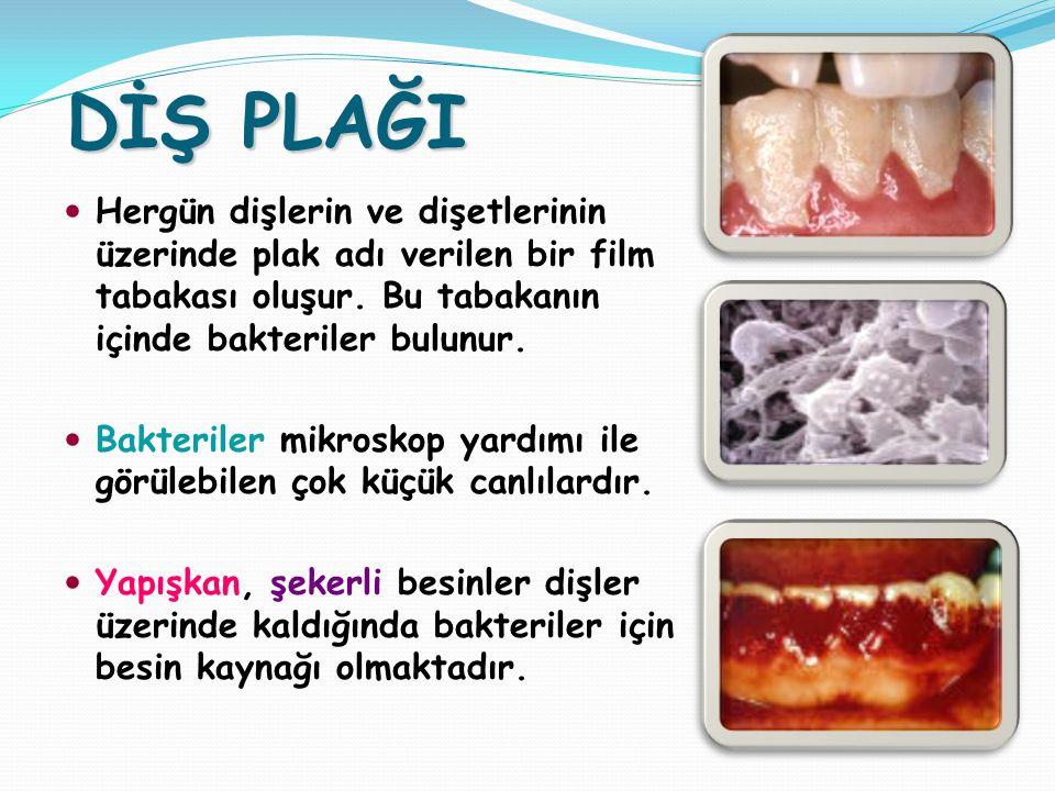 DİŞ PLAĞI Hergün dişlerin ve dişetlerinin üzerinde plak adı verilen bir film tabakası oluşur. Bu tabakanın içinde bakteriler bulunur.
