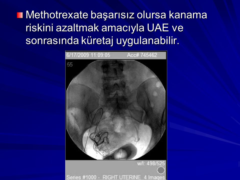 Methotrexate başarısız olursa kanama riskini azaltmak amacıyla UAE ve sonrasında küretaj uygulanabilir.