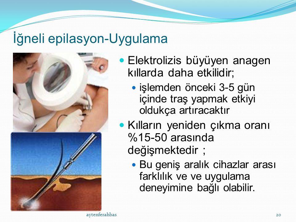 İğneli epilasyon-Uygulama