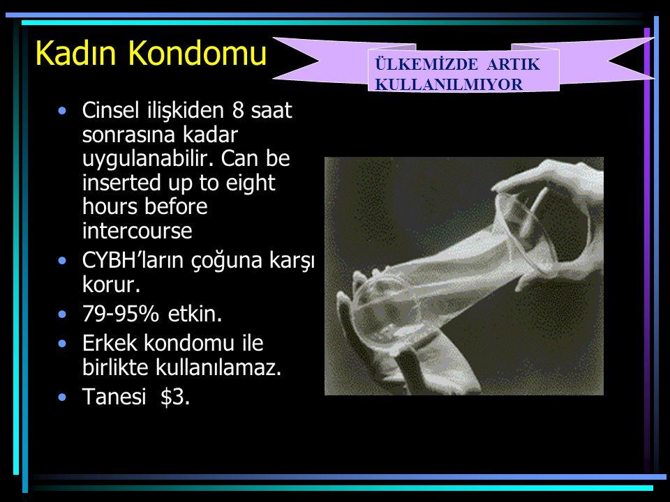 Kadın Kondomu ÜLKEMİZDE ARTIK KULLANILMIYOR.